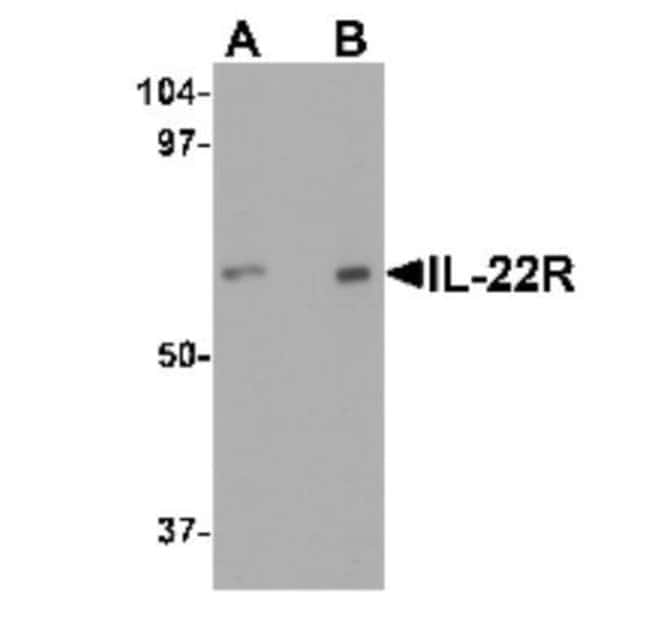 IL-22R alpha 1 Rabbit anti-Human, Rat, Polyclonal, Novus Biologicals 0.1mg;