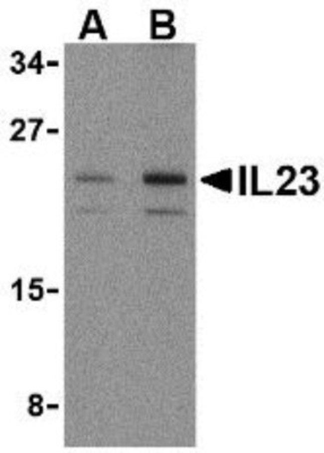 anti-IL-23A/IL-23 P19, Polyclonal, Novus Biologicals 0.1mg; Unlabeled:Life