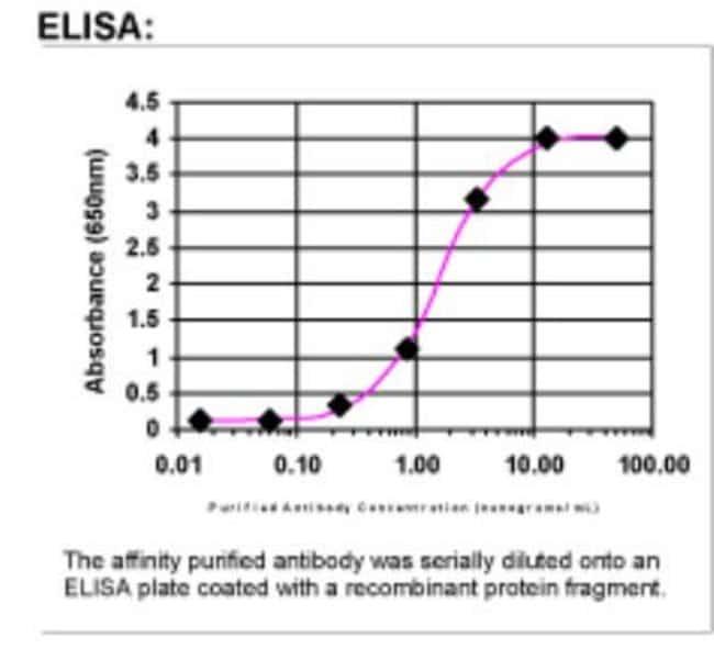 IL-4R alpha Rabbit anti-Human, Polyclonal, Novus Biologicals 0.05mg; Unlabeled:Life