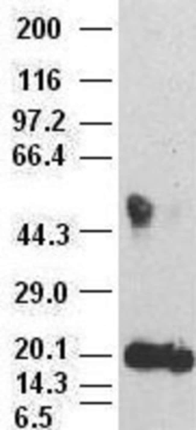IL-6 Mouse anti-Human, Clone: OTI3G9, Novus Biologicals 0.1mL; Unlabeled:Life