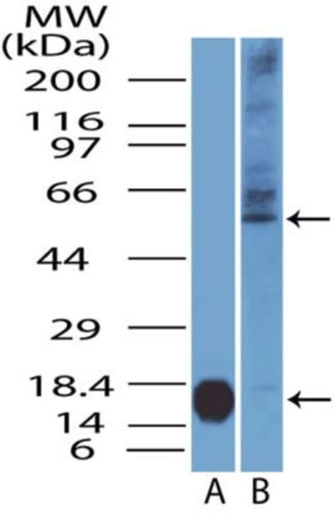 anti-IL-7 R alpha/CD127, Polyclonal, Novus Biologicals:Antibodies:Primary