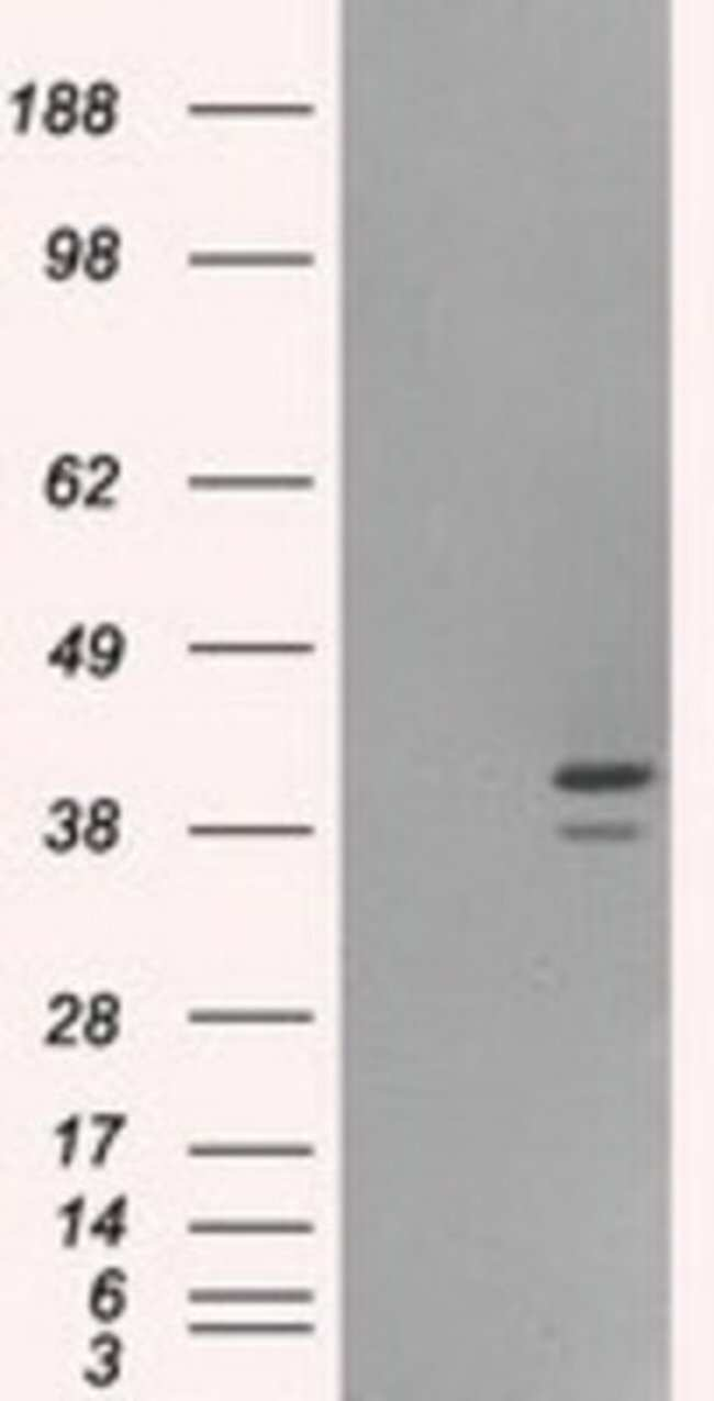 anti-ILF2, Clone: 6F1, Novus Biologicals 0.1mL; Unlabeled:Life Sciences