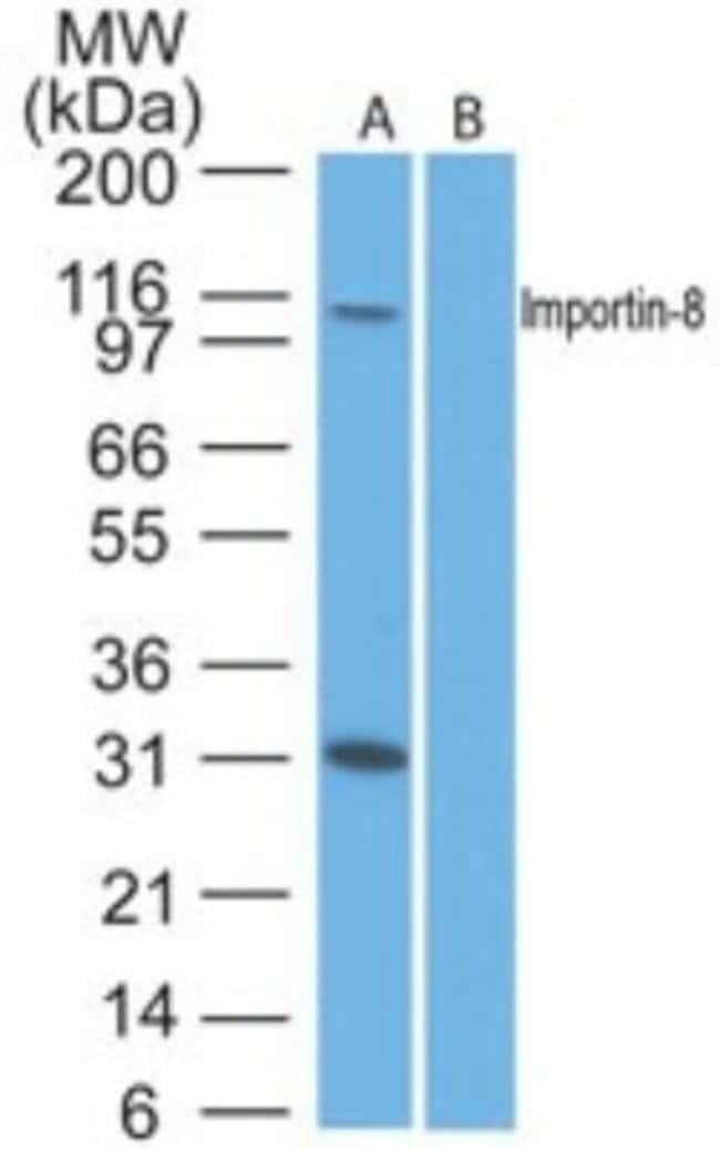 anti-Importin-8, Polyclonal, Novus Biologicals:Antibodies:Primary Antibodies