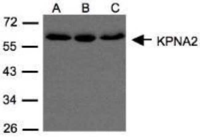 anti-Importin alpha 2/KPNA2, Polyclonal, Novus Biologicals 0.1mL; Unlabeled:Antibodies