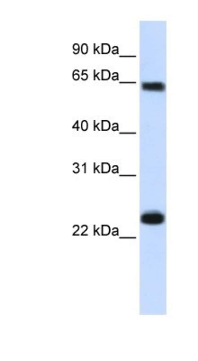 Importin alpha 5/KPNA1/SRP1 Rabbit anti-Human, Polyclonal, Novus Biologicals