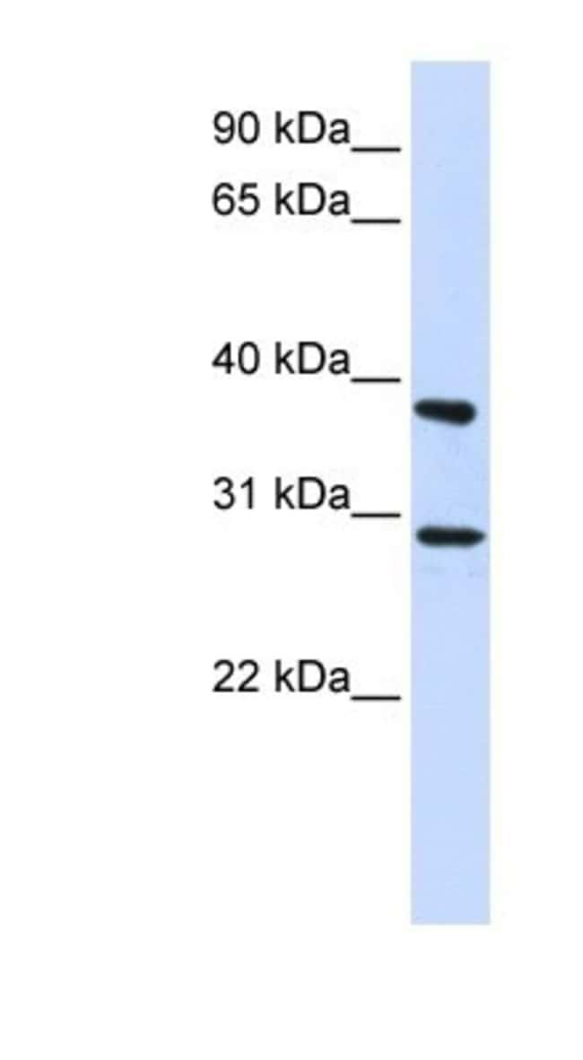 ING4 Rabbit anti-Human, Polyclonal, Novus Biologicals 20µL; Unlabeled
