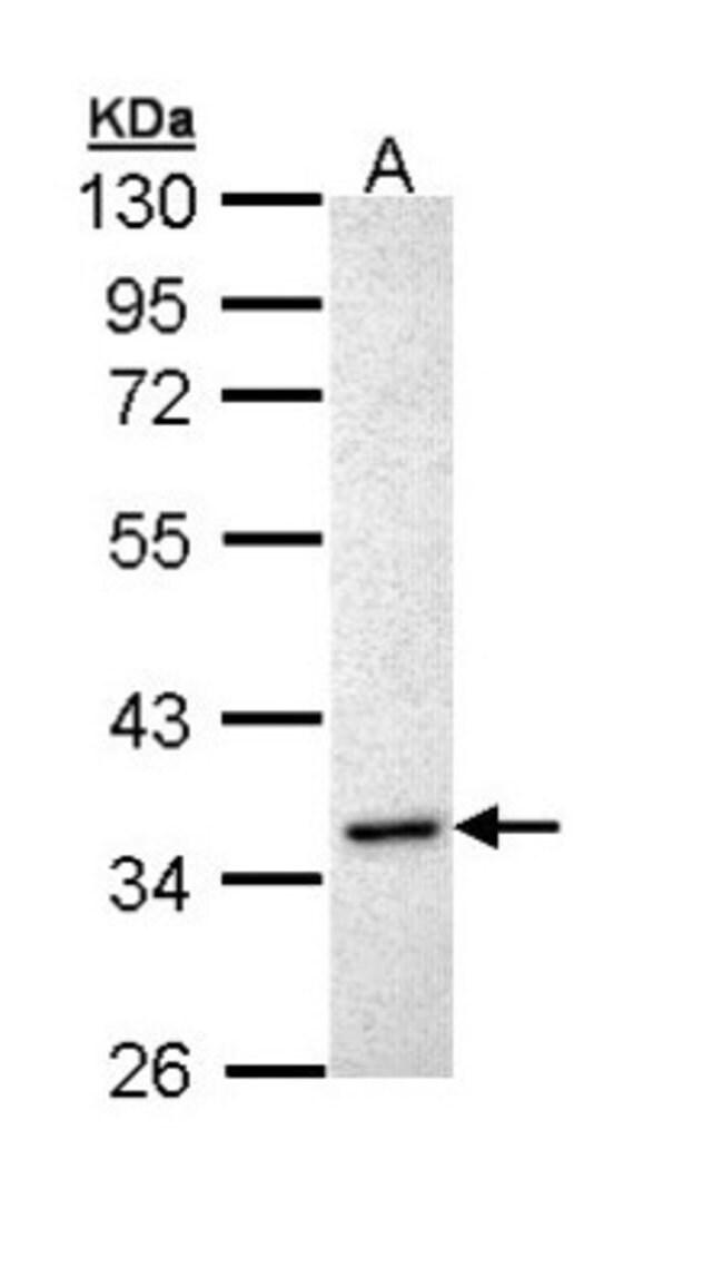 anti-Inhibin alpha, Polyclonal, Novus Biologicals 0.1mL; Unlabeled:Antibodies