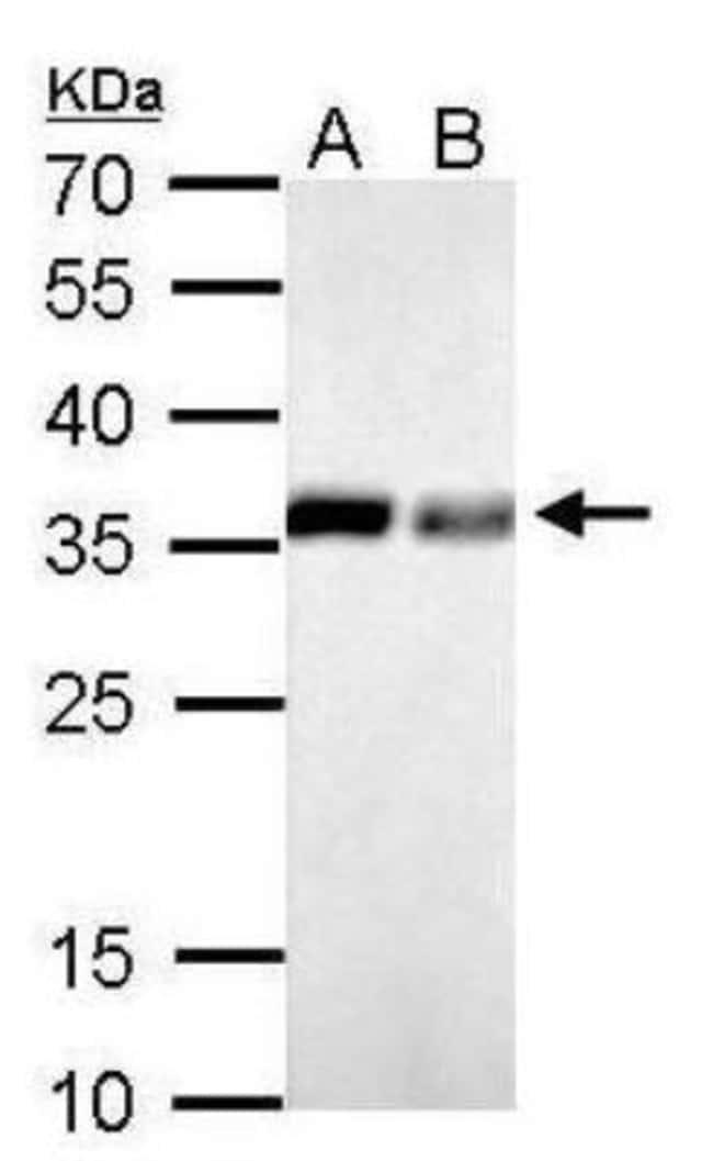 anti-Inorganic Pyrophosphatase/PPA1, Polyclonal, Novus Biologicals 0.1mL;