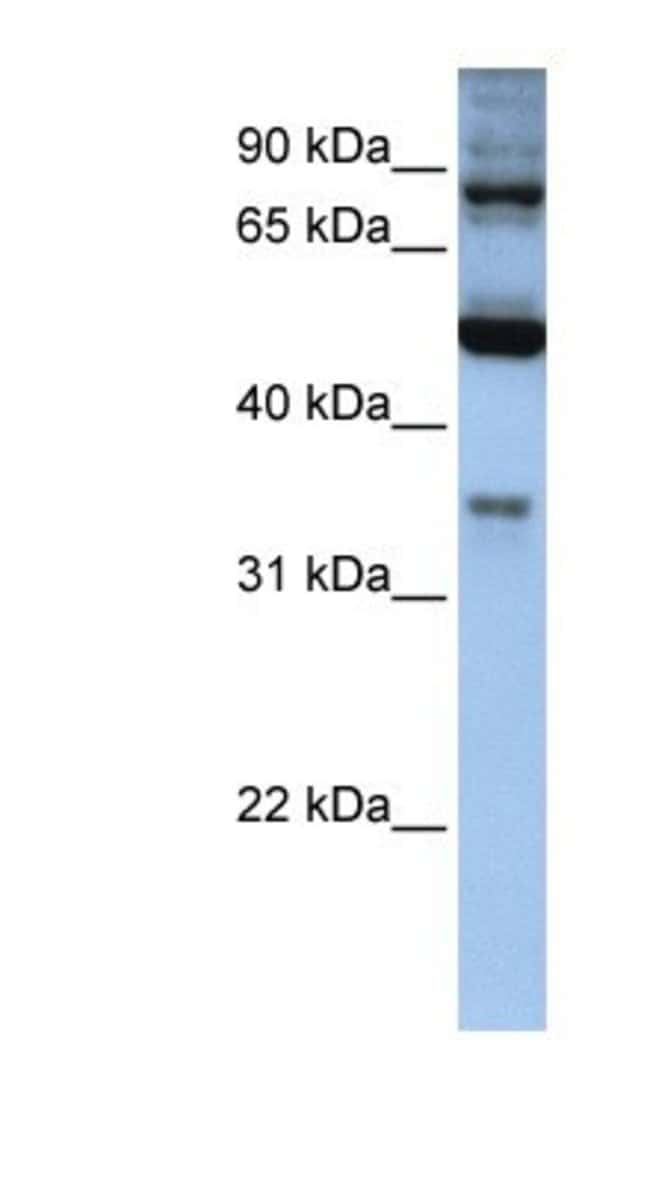 INPP5B Rabbit anti-Human, Polyclonal, Novus Biologicals 100µL; Unlabeled:Life