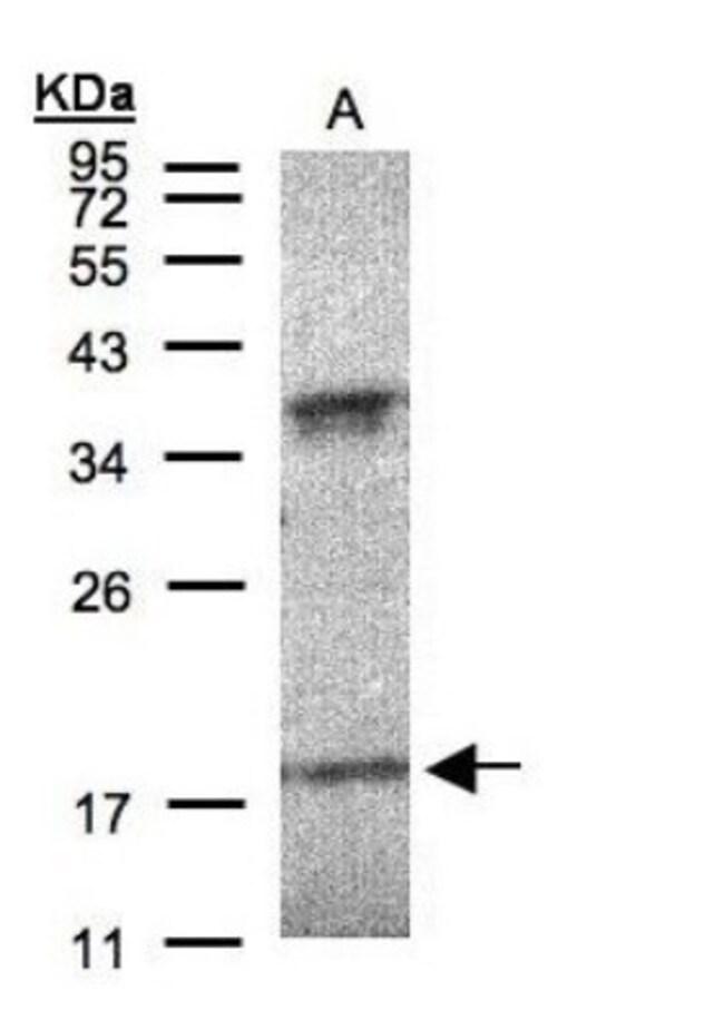 anti-Interferon alpha 6, Polyclonal, Novus Biologicals 0.1mg; Unlabeled:Life