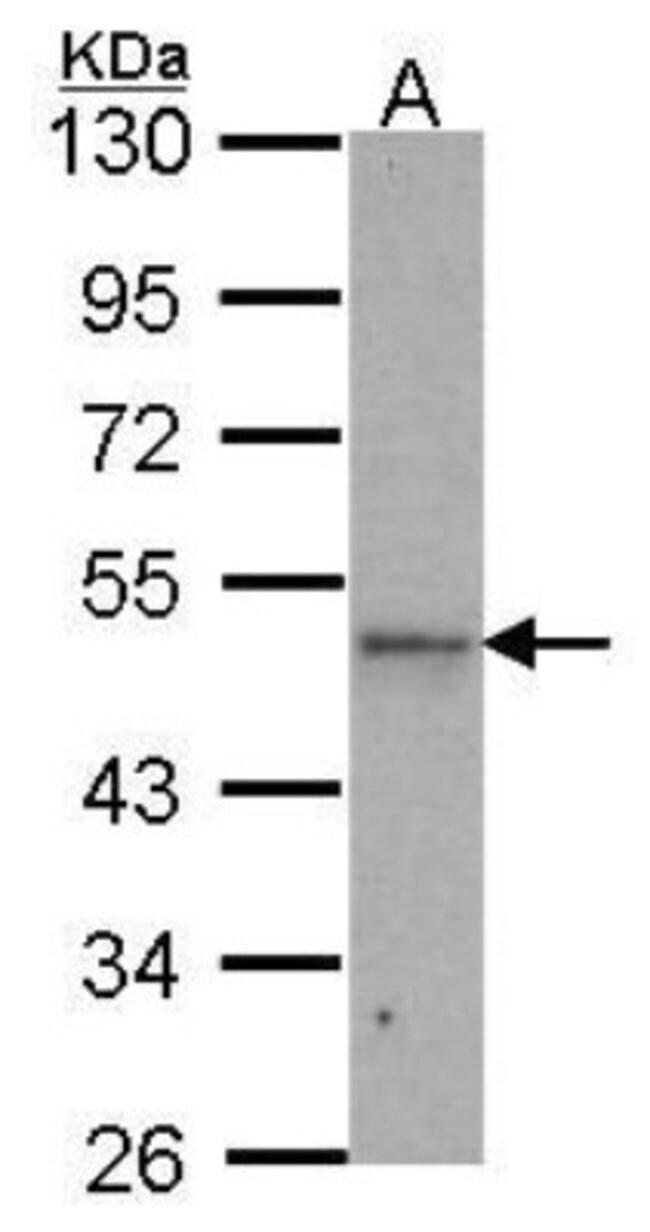 anti-IPMK, Polyclonal, Novus Biologicals 0.1mL; Unlabeled:Life Sciences
