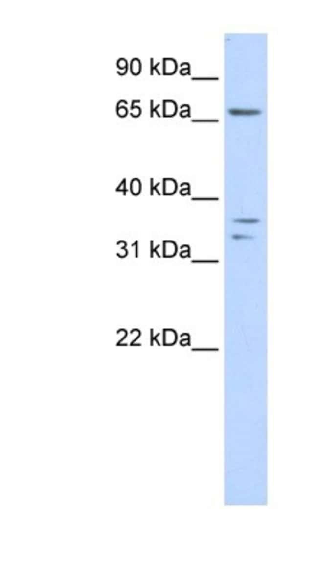IQCE Rabbit anti-Human, Polyclonal, Novus Biologicals 100µL; Unlabeled:Life