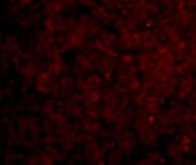 anti-IRAK3, Polyclonal, Novus Biologicals 0.1mg; Unlabeled:Life Sciences