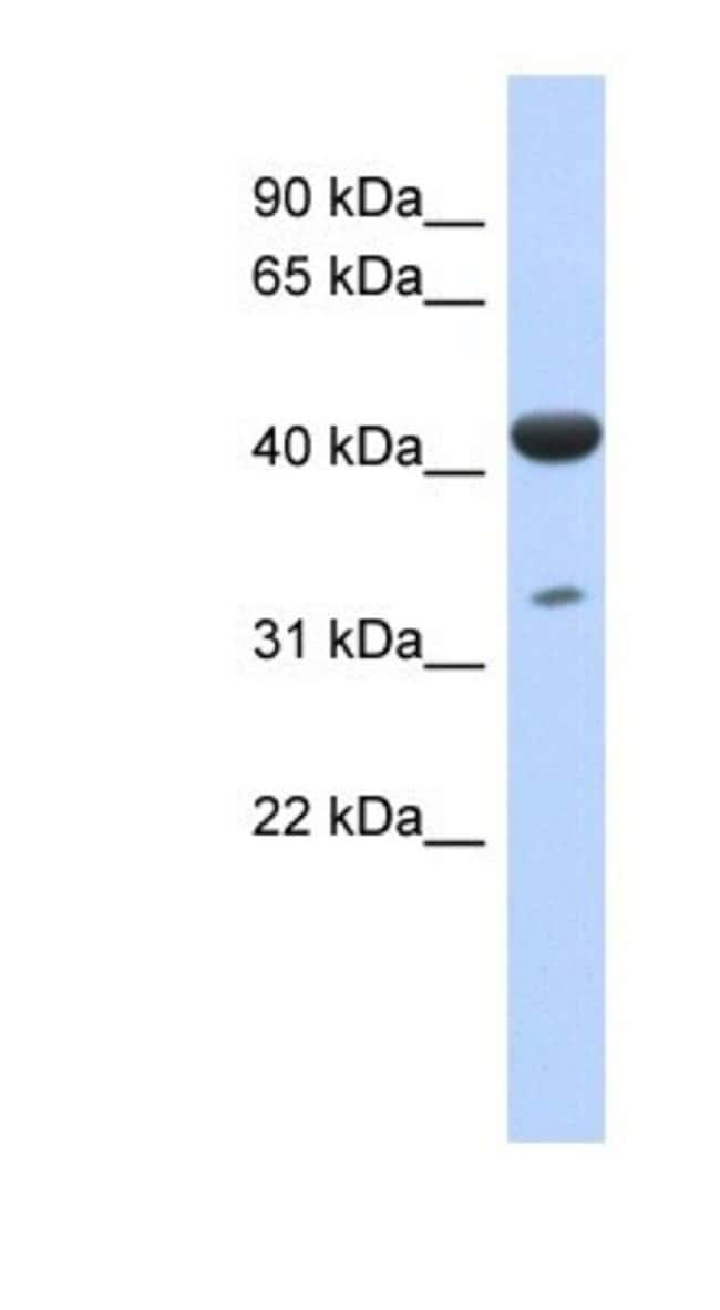 ISPD Rabbit anti-Human, Polyclonal, Novus Biologicals 20µL; Unlabeled