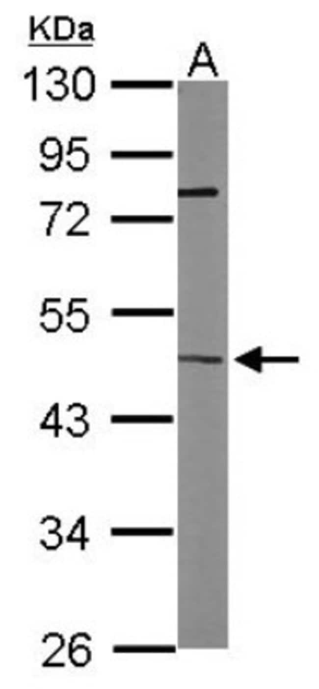 anti-ITPK1, Polyclonal, Novus Biologicals 0.1mL; Unlabeled:Life Sciences
