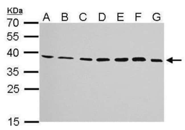 anti-JAM-B/VE-JAM, Polyclonal, Novus Biologicals 0.1mg; Unlabeled:Life