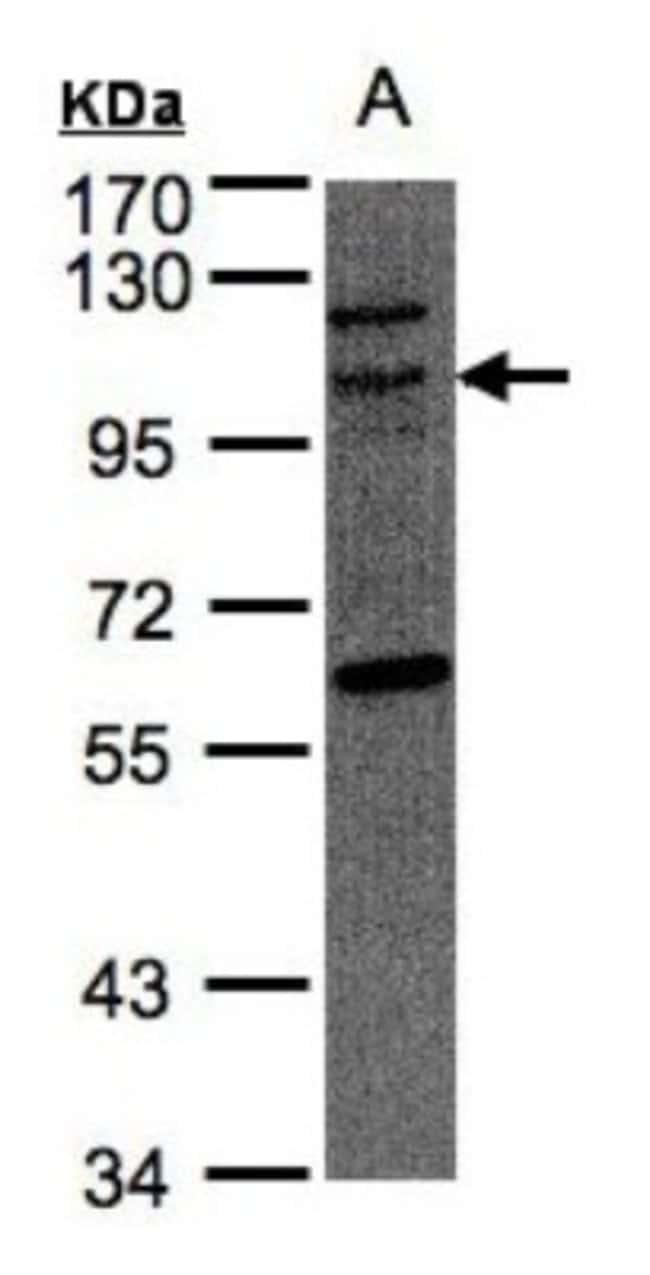 anti-JIK, Polyclonal, Novus Biologicals 0.1mL; Unlabeled:Life Sciences