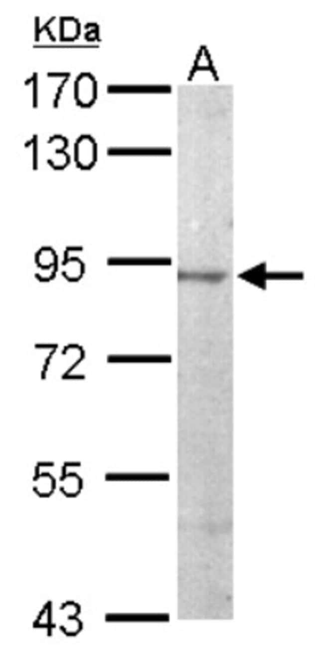 anti-JIP2, Polyclonal, Novus Biologicals 0.1mg; Unlabeled:Antibodies