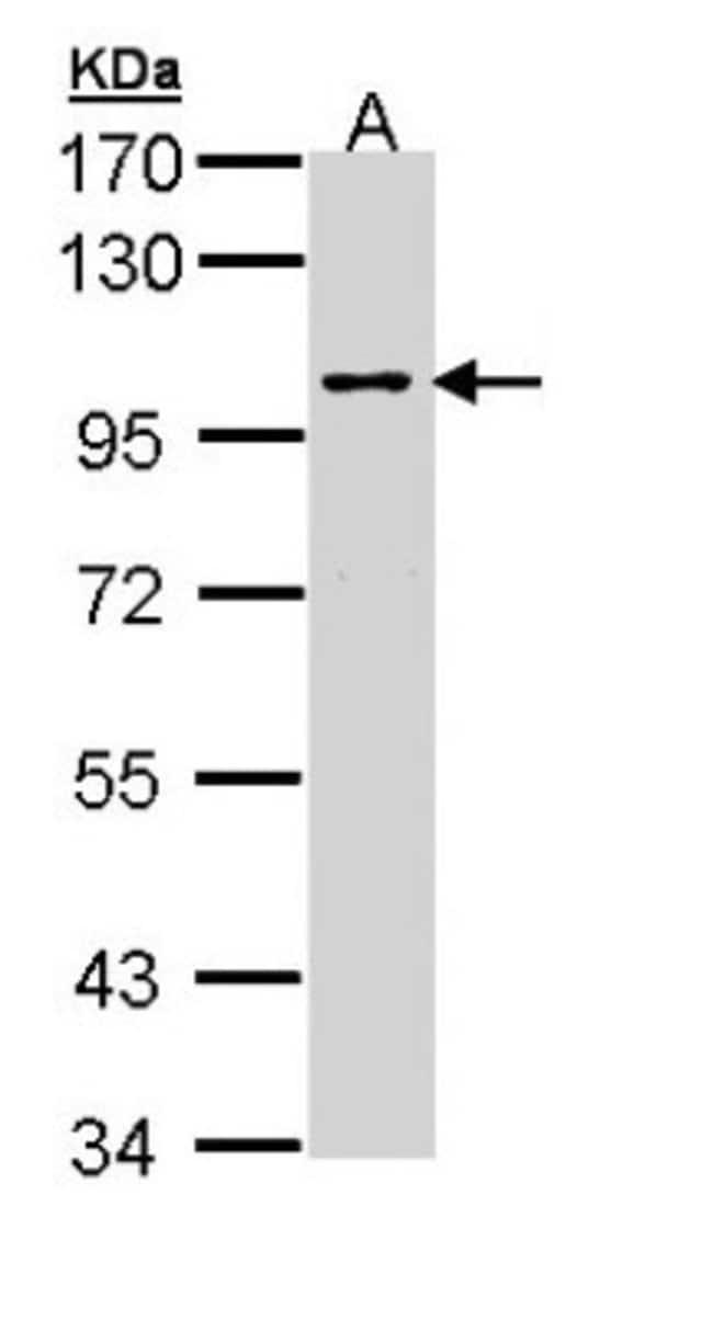 anti-JIP2, Polyclonal, Novus Biologicals 0.1mg; Unlabeled:Life Sciences
