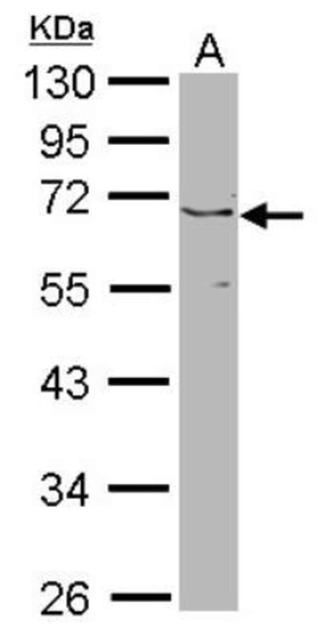 anti-JMJD6/PSR, Polyclonal, Novus Biologicals 0.1mg; Unlabeled:Antibodies