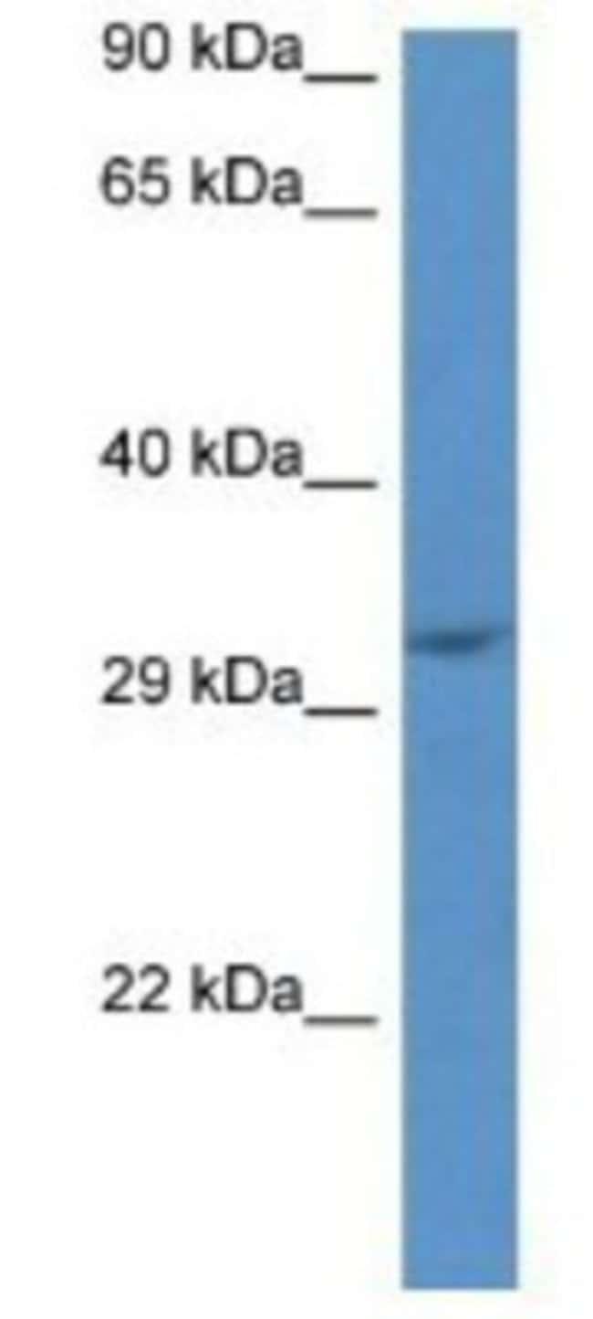 JMJD8 Rabbit anti-Mouse, Polyclonal, Novus Biologicals 100µL; Unlabeled:Life