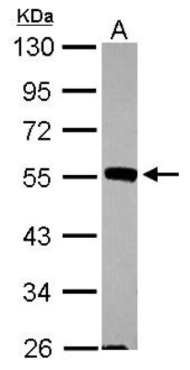 JNK2 Rabbit anti-Human, Mouse, Insect, Polyclonal, Novus Biologicals 0.1mL;