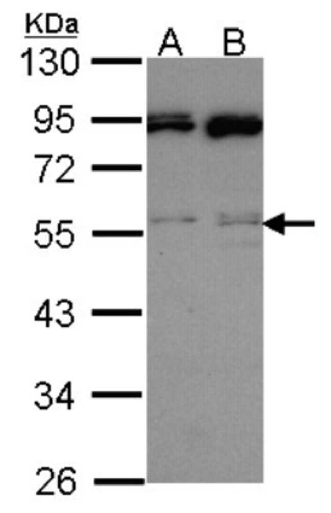 anti-JNK2, Polyclonal, Novus Biologicals 0.1mL; Unlabeled:Life Sciences
