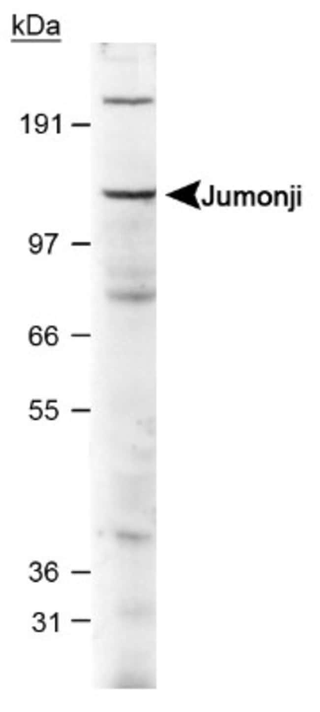 anti-Jumonji/JARID2, Polyclonal, Novus Biologicals:Antibodies:Primary Antibodies