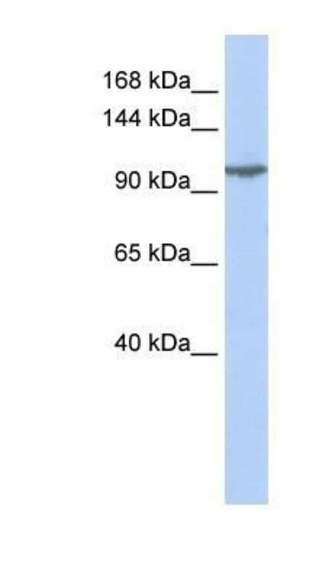 KA2/GRIK5/Glutamate Receptor KA2 Rabbit, Polyclonal, Novus Biologicals