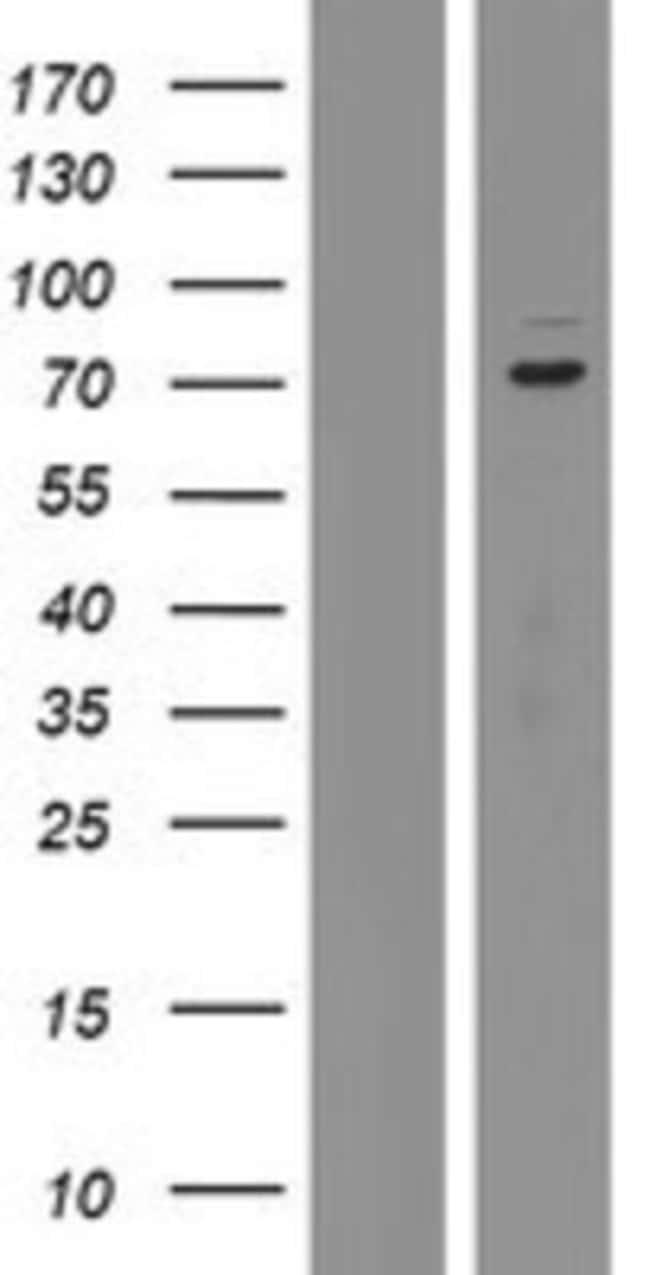 Novus Biologicals KBTBD2 Overexpression Lysate (Native) 0.1mg:Life Sciences