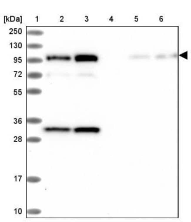 anti-KCC4/SLC12A7, Polyclonal, Novus Biologicals 0.1mL; Unlabeled:Life