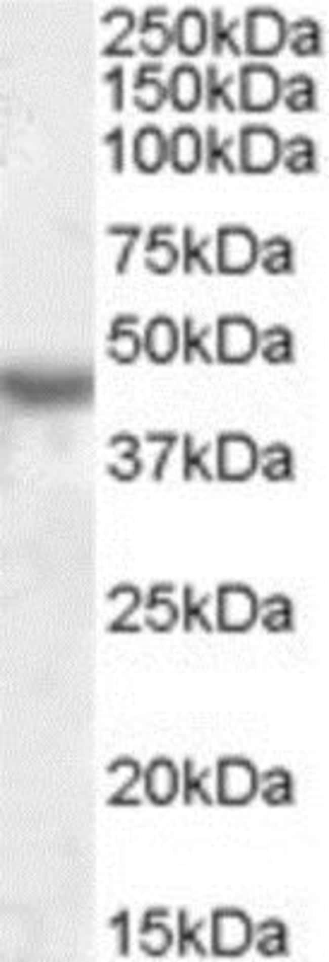 anti-KCNJ1, Polyclonal, Novus Biologicals 0.1mg; Unlabeled:Antibodies