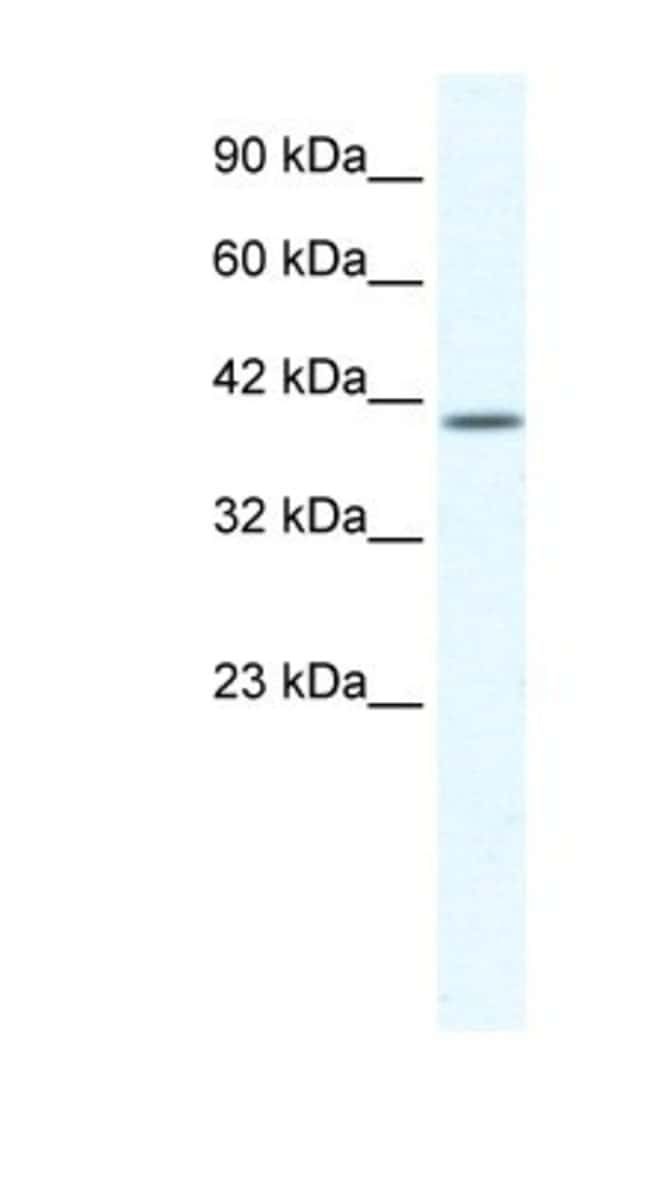 KCNK13 Rabbit anti-Human, Polyclonal, Novus Biologicals 20µL; Unlabeled