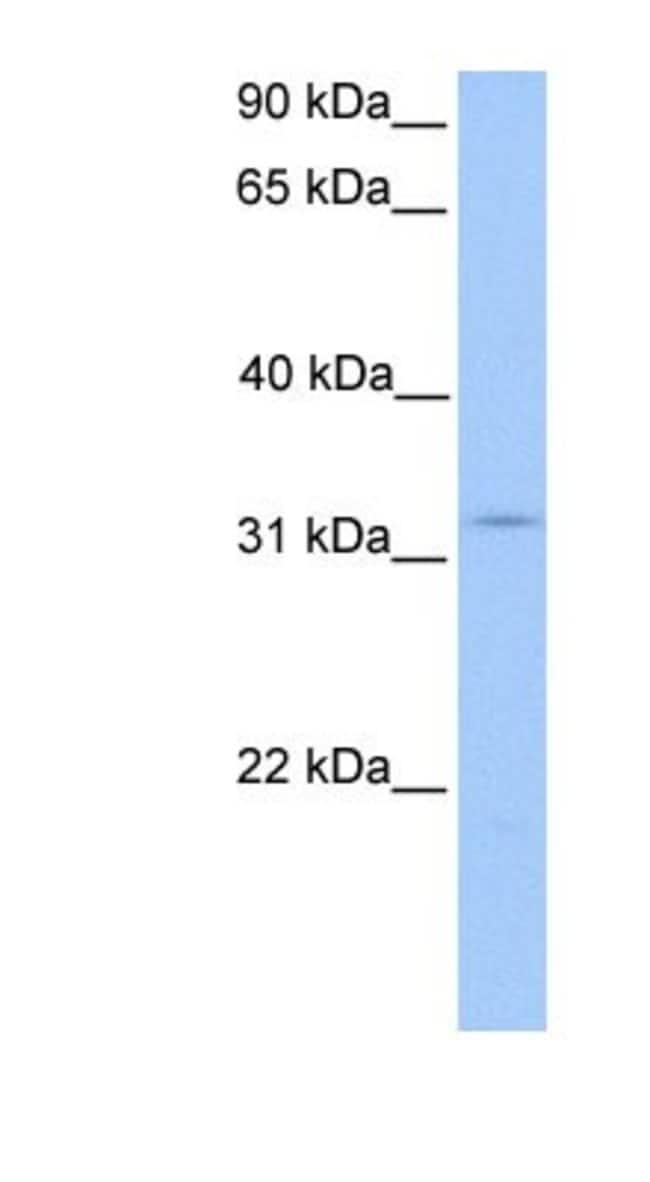 KCTD21 Rabbit anti-Human, Polyclonal, Novus Biologicals 20µL; Unlabeled
