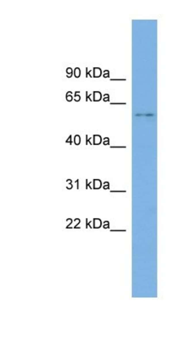 KIAA1430 Rabbit anti-Human, Polyclonal, Novus Biologicals 100µL; Unlabeled:Life