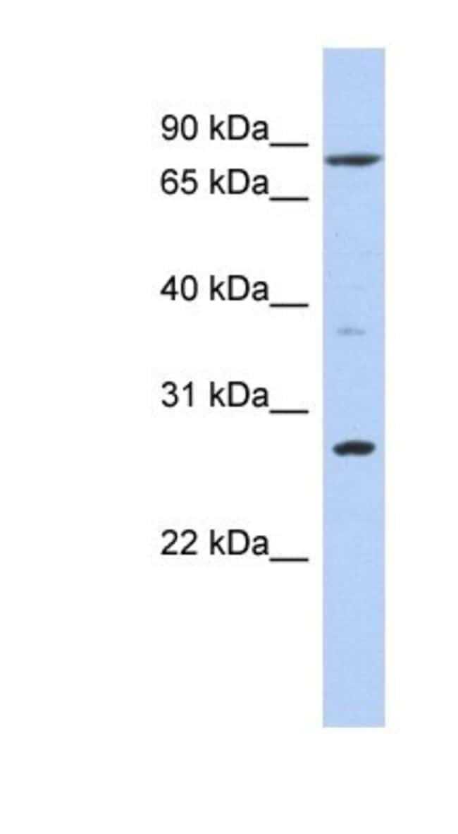 KLF12 Rabbit anti-Human, Polyclonal, Novus Biologicals 20µL; Unlabeled