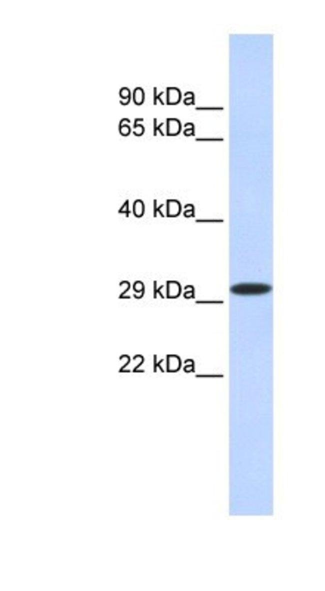 KLF14 Rabbit anti-Human, Porcine, Canine, Rabbit, Polyclonal, Novus Biologicals
