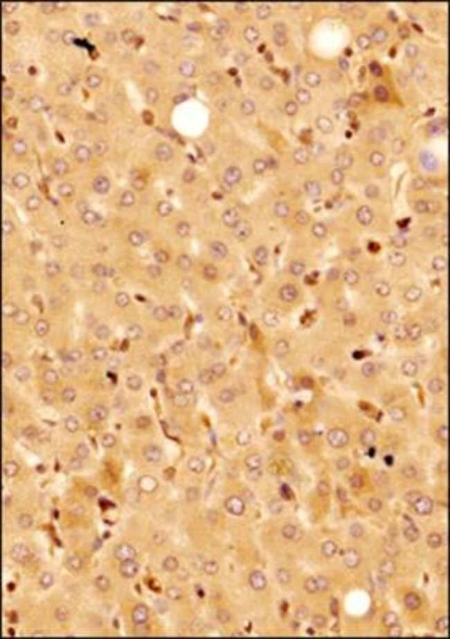 KLF15 Rabbit anti-Human, Bovine, Polyclonal, Novus Biologicals:Antibodies:Primary