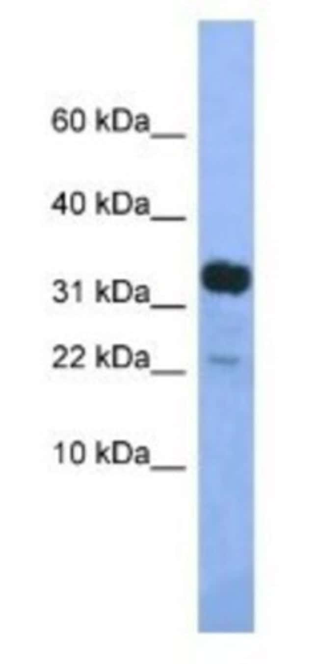 KLHDC9 Rabbit anti-Mouse, Polyclonal, Novus Biologicals 20µL; Unlabeled