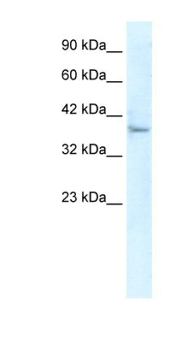 KLHL14 Rabbit anti-Human, Polyclonal, Novus Biologicals 100µL; Unlabeled:Life