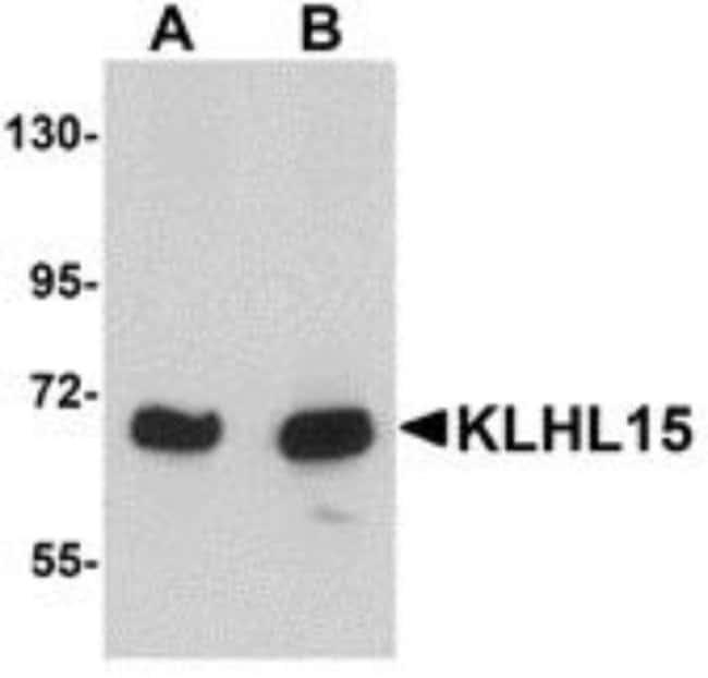 anti-KLHL15, Polyclonal, Novus Biologicals 0.1mg; Unlabeled:Life Sciences