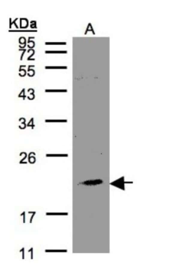 anti-KLRC4, Polyclonal, Novus Biologicals 0.1mL; Unlabeled:Life Sciences