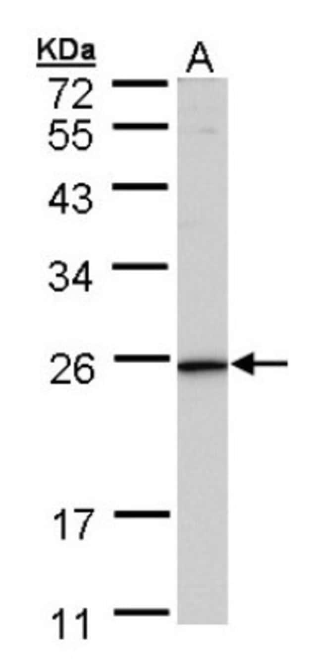 anti-KLRG1, Polyclonal, Novus Biologicals 0.1mg; Unlabeled:Life Sciences