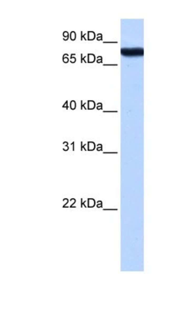 KOX2 Rabbit anti-Human, Polyclonal, Novus Biologicals 20µL; Unlabeled