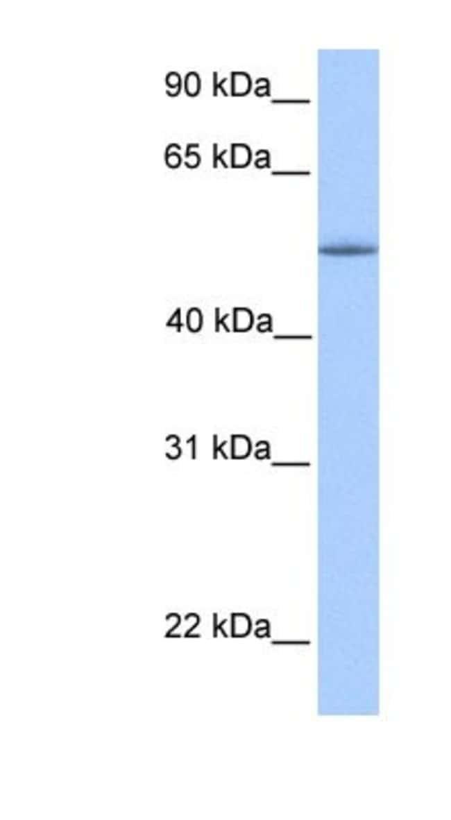 KOX8 Rabbit anti-Human, Polyclonal, Novus Biologicals 100µL; Unlabeled:Life
