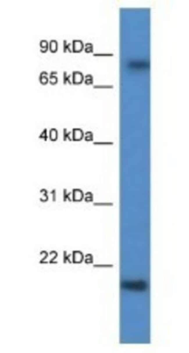 KRTAP1-5 Rabbit anti-Human, Polyclonal, Novus Biologicals 20µL; Unlabeled