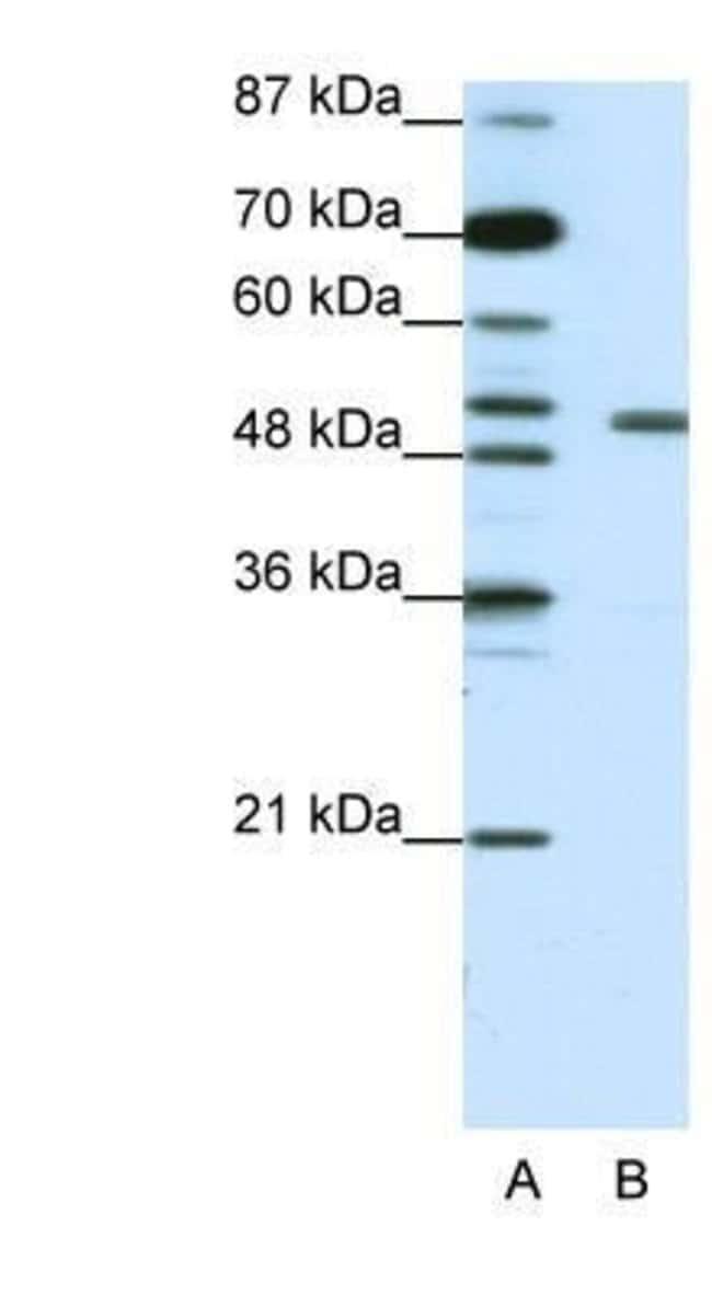 KvBeta2 Rabbit anti-Human, Polyclonal, Novus Biologicals 20µL; Unlabeled