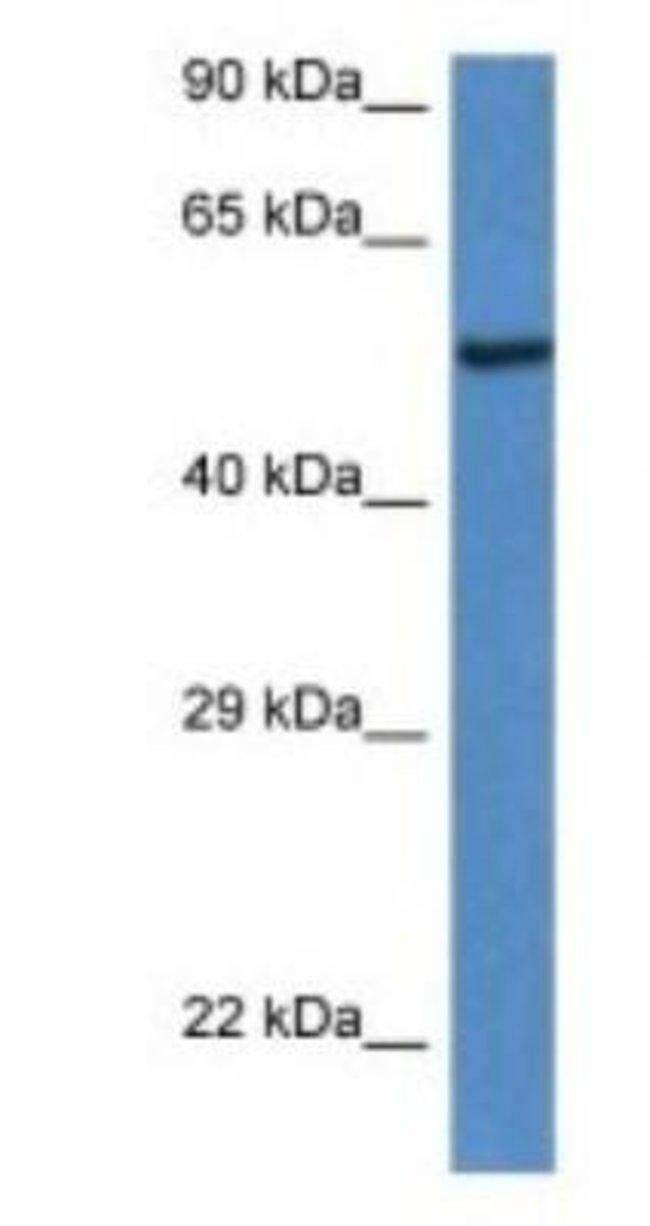 LACC1 Rabbit anti-Mouse, Polyclonal, Novus Biologicals 100µL; Unlabeled:Life