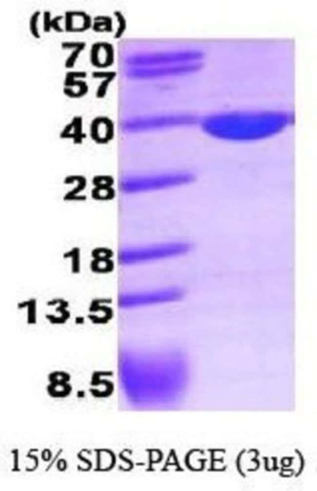 Novus Biologicals Human Lactate Dehydrogenase A/LDHA Recombinant Protein