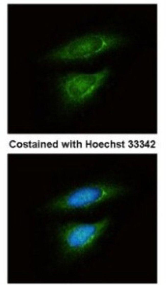 anti-Lactate Dehydrogenase B, Polyclonal, Novus Biologicals 0.1mL; Unlabeled:Antibodies